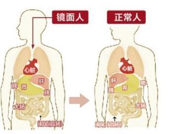 他的肝、胆、阑尾长在左边,心、脾、胃长在右边.据该院普外科陶庆图片