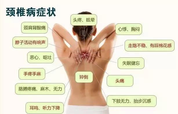 颈椎病的治疗方法图_治颈椎病最好的方法【相关词_ 颈椎病的最好治疗偏方】_捏游