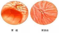 区分胃溃疡胃癌 胃溃疡良性病变