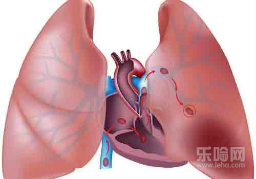 肺结核 纵隔 检查