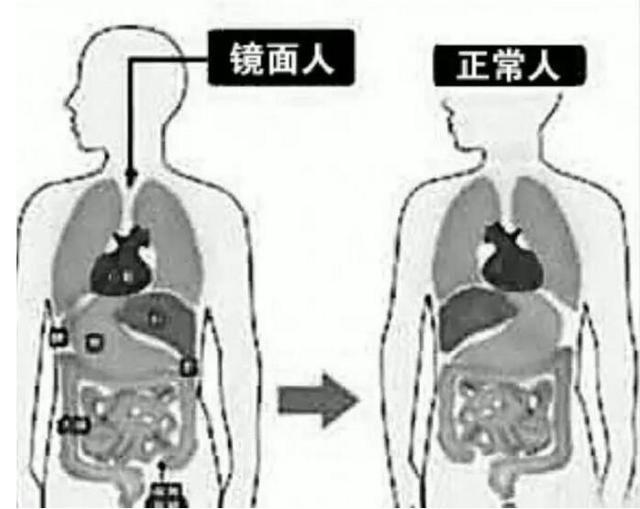 心脏、脾脏在右边,肝脏位于左边,心、肝、脾的位置好像是正常脏器图片